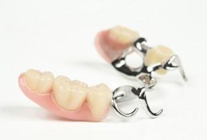 Zahnzusatzversicherung für Prothesen