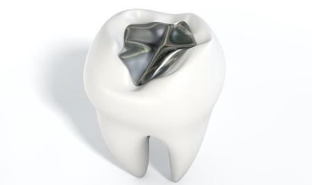 Zahnfüllung durch Zusatzversicherung abdecken