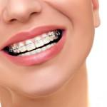 Zahnzusatzverischerung Kieferorthopädie