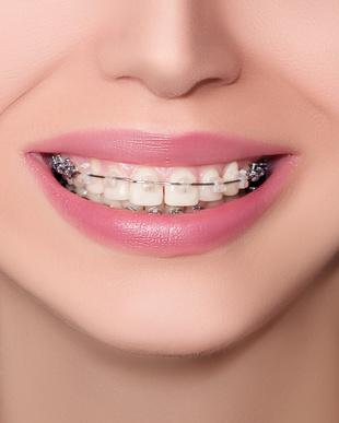 Zahnzusatzversicherung für kieferorthopädische Behandlungen