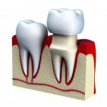 Zahnzusatzversicherung Kronen