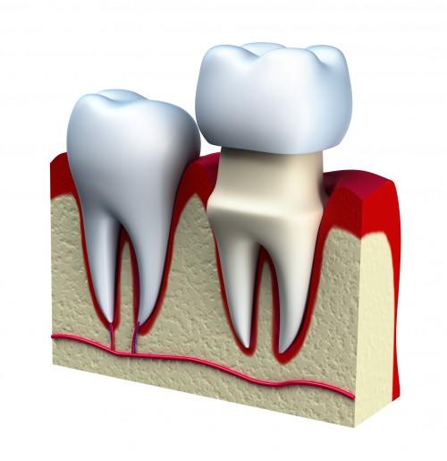Zahnzusatzversicherung für die Verkronung